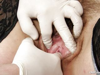 hairy mature pussy on vigorous exam